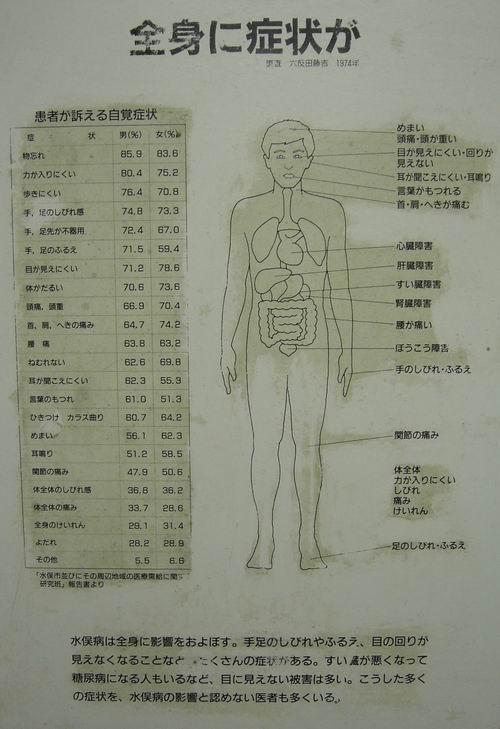 症状 水俣 病